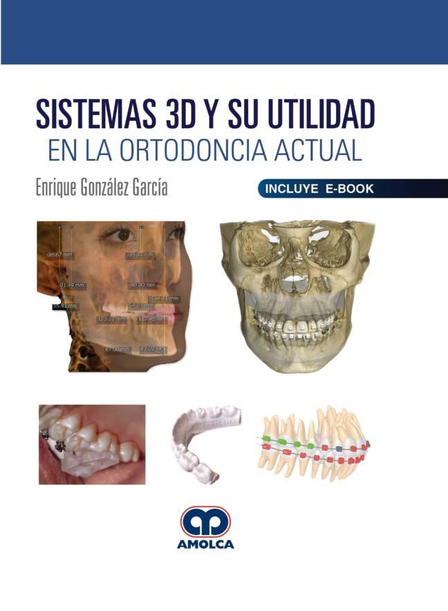Sistemas 3D y su Utilidad en la Ortodoncia Actual