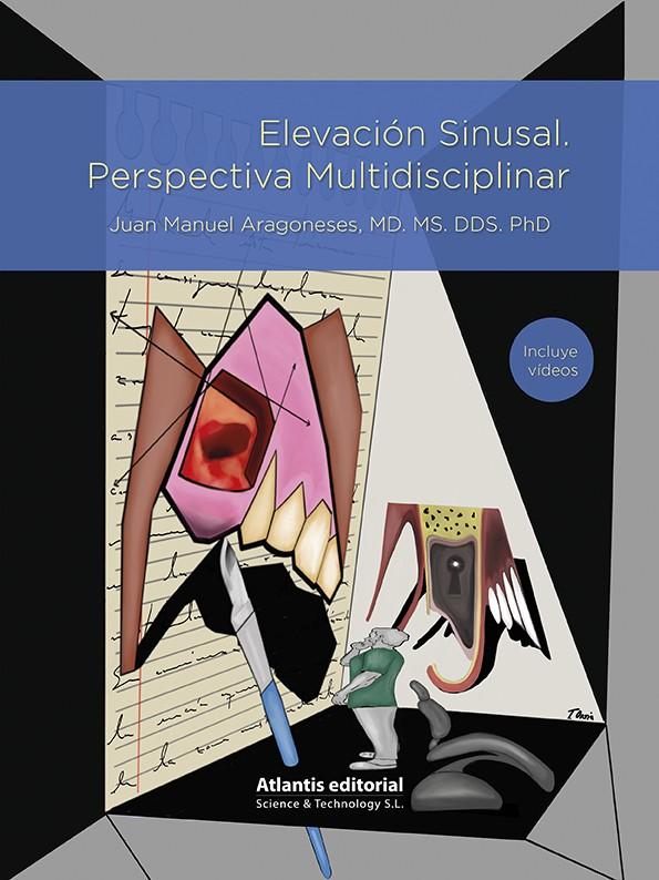 Elevación Sinusal. Perspectiva Multidisciplinar