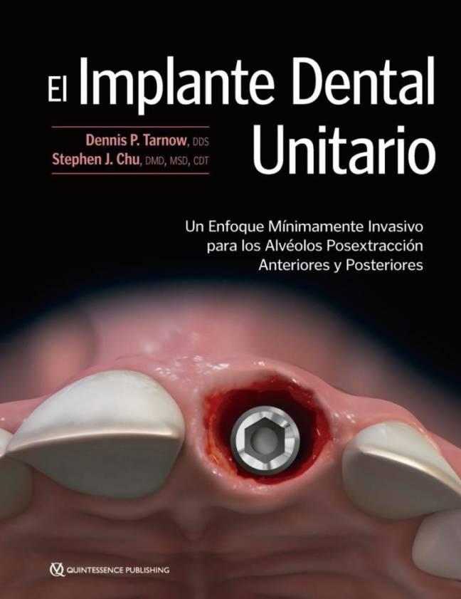 El Implante Dental Unitario.