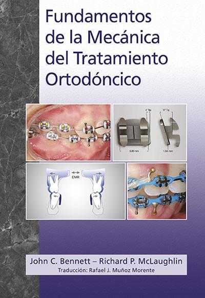 Fundamentos de la Mecánica del Tratamiento Ortodóncico