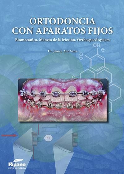 Ortodoncia con Aparatos Fijos. Biomecánica.