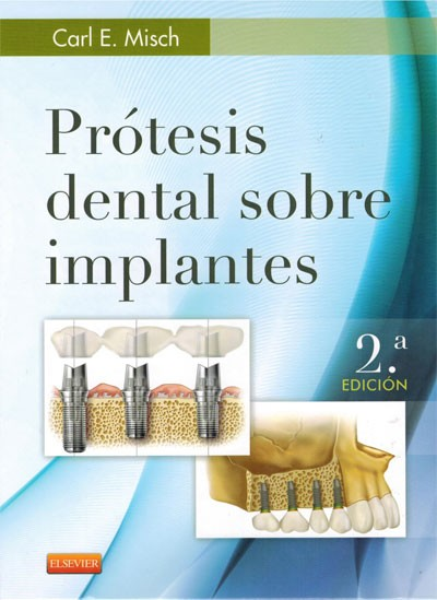 Prótesis Dental sobre Implantes