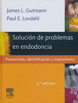 Solución de Problemas en Endodoncia.