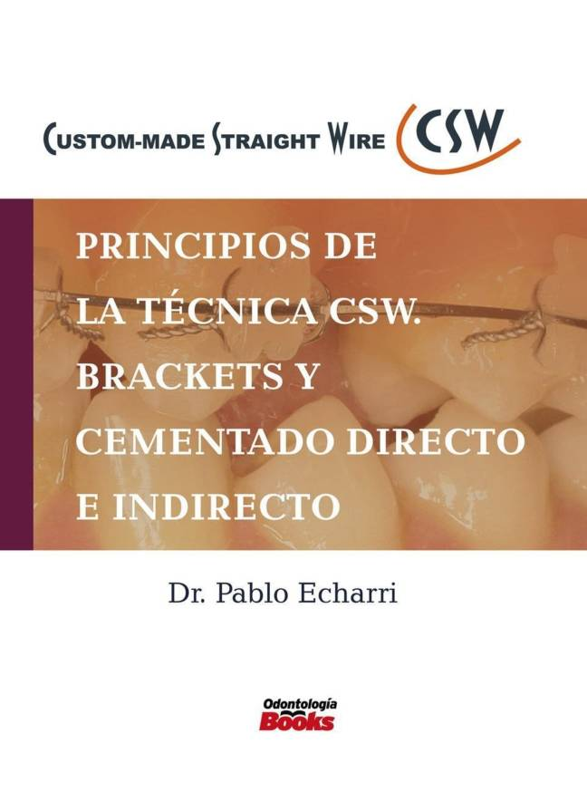 Principios de la técnica CSW.