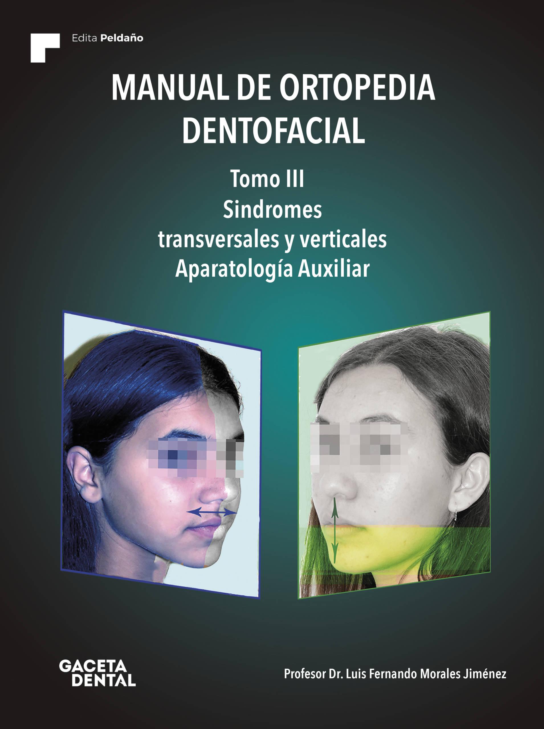 Manual de Ortopedia Dentofacial. Tomo III. Síndromes transversales y verticales. Aparatología Auxiliar